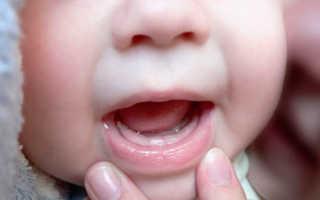 Стоматит у грудничка лечение в домашних условиях