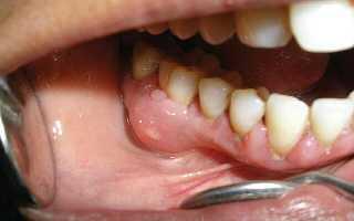 Воспаление кости зуба