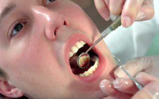 Киста на корне зуба лечение антибиотиками