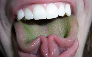 Зеленый налет, что делать