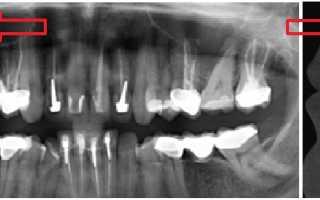Лицевые нервы и зубы