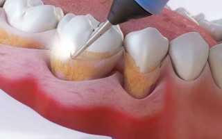 Черный камень на зубах