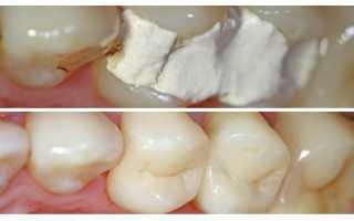Установка пломбы для зубов: какие лучше