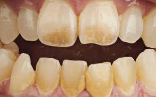 Как убрать с зубов коричневый налет