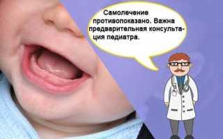 От прорезывания зубов препараты