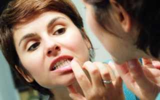 После лечения зуба болит десна