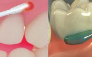 Стоматологическая анестезия: виды и их достоинства