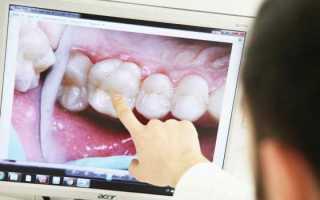 Реставрация зубов люминирами – описание процесса