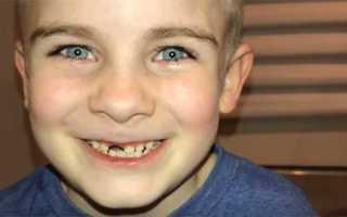 Выпал зуб у ребенка чем обработать