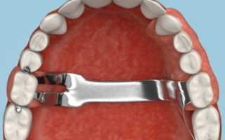 Гибкие зубные протезы что это такое