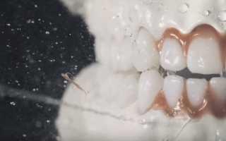 Для чего нужен ирригатор полости рта
