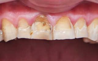 Флюорозные зубы