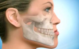 Почему хрустит челюсть