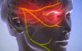 Чем лечить тройничный нерв в домашних условиях