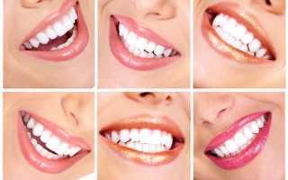 Что можно есть после отбеливания зубов