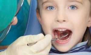 Стоматит лечение у подростков