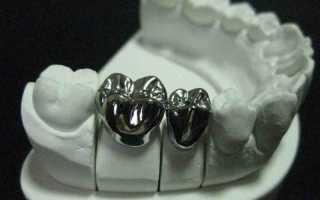 Штампованная металлическая коронка – преимущества и недостатки