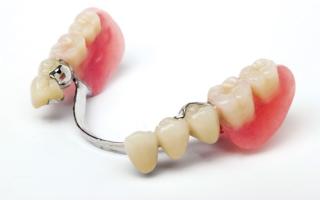 Бюгельный протез зубов – виды, отзывы о продукте