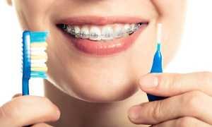 Сапфировые брекеты Miso – гарантия эффективности и эстетики
