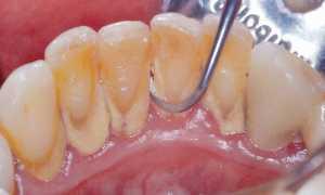 Можно ли курить после чистки зубов