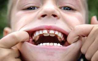 Почему не растут зубы