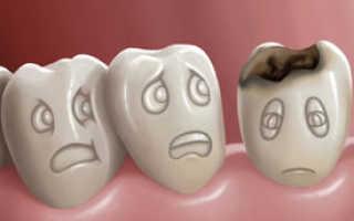 Кариес зубов симптомы