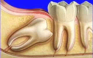 Ноет челюсть после удаления зуба мудрости