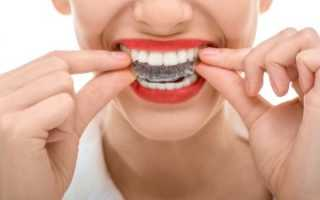 Каппы на зубы – виды