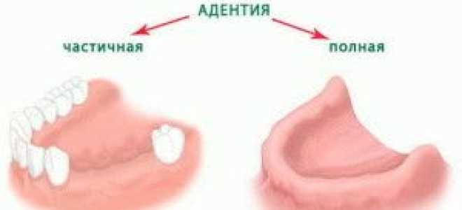 Протезирование зубов при отсутствии зубов верхней челюсти