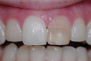 Фото: Зуб потемнел после удаления нерва
