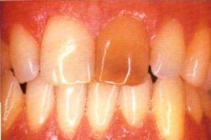 Фото: Потемневший мертвый зуб