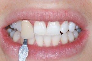 Фото: Химическое отбеливание зубов позволяет получить заметный результат