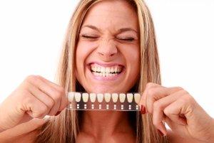 Фото: Плюсы и минусы отбеливания зубов
