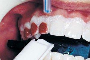 Фото: Как быстро отбелить зубы
