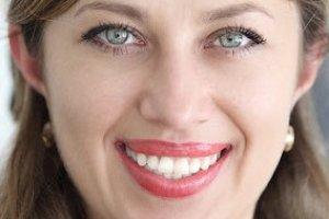 Фото: Результат фотоотбеливания зубов