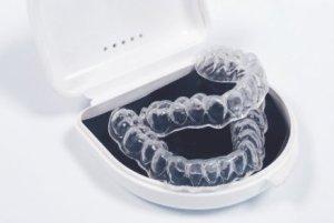 Фото: Капы для отбеливания зубов