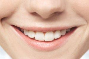 Фото: Профессиональное отбеливание зубов - гарантированный результат