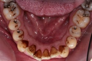Фото: Последствие курения для зубов