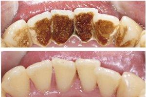 Фото: Налет курильщика до и после профессиональной чистки