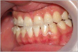 Фото: Обработка зубов под прямую реставрацию
