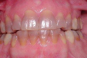 Фото: Тетрациклиновые зубы