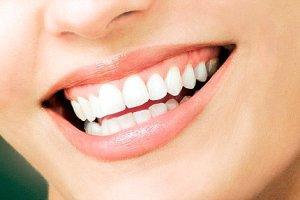 Фото: Установка виниров в стоматологии - популярная процедура