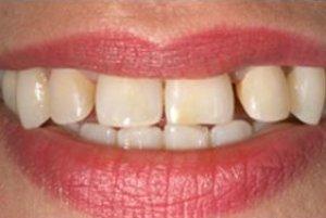 Фото: Исходное состояние зубов