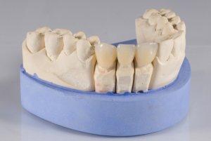 Фото: Изготовление зубов из безметалловой керамики
