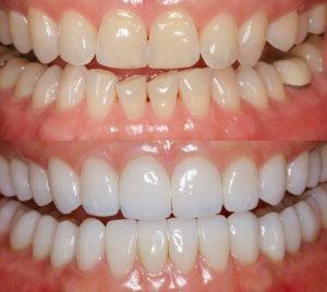 Реставрация зубов: до и после. Художественная реставрация зубов
