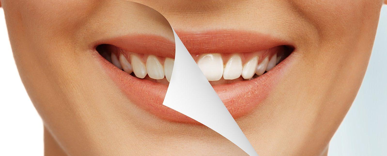Отвары для отбеливания зубов